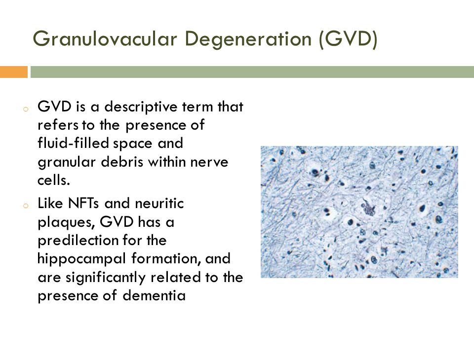 Granulovacular Degeneration (GVD) o GVD is a descriptive term that refers to the presence of fluid-filled space and granular debris within nerve cells