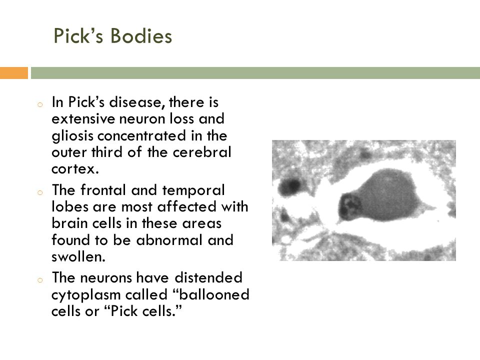 Pick's Bodies o In Pick's disease, there is extensive neuron loss and gliosis concentrated in the outer third of the cerebral cortex. o The frontal an