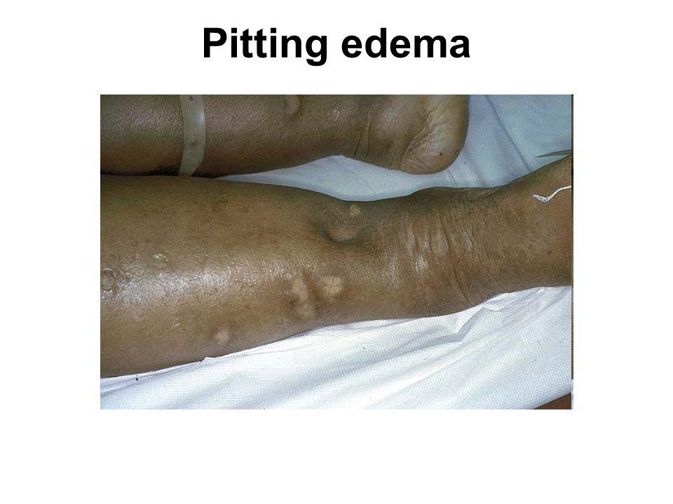 Pitting edema