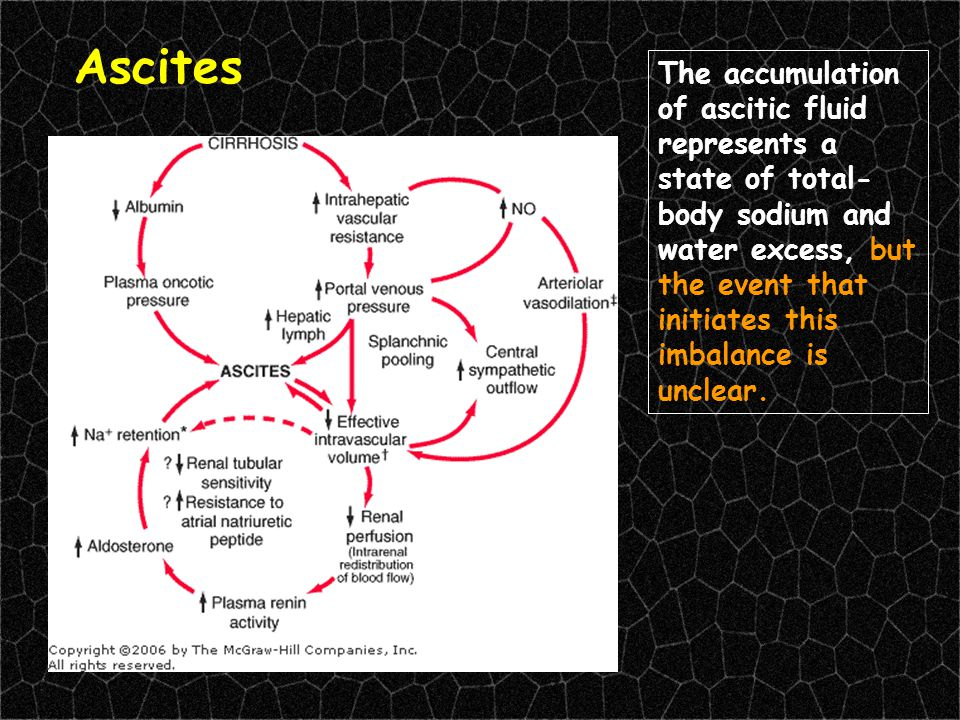 Ascites The accumulation of ascitic fluid represents a state of total- body sodium and water excess, but the event that initiates this imbalance is un