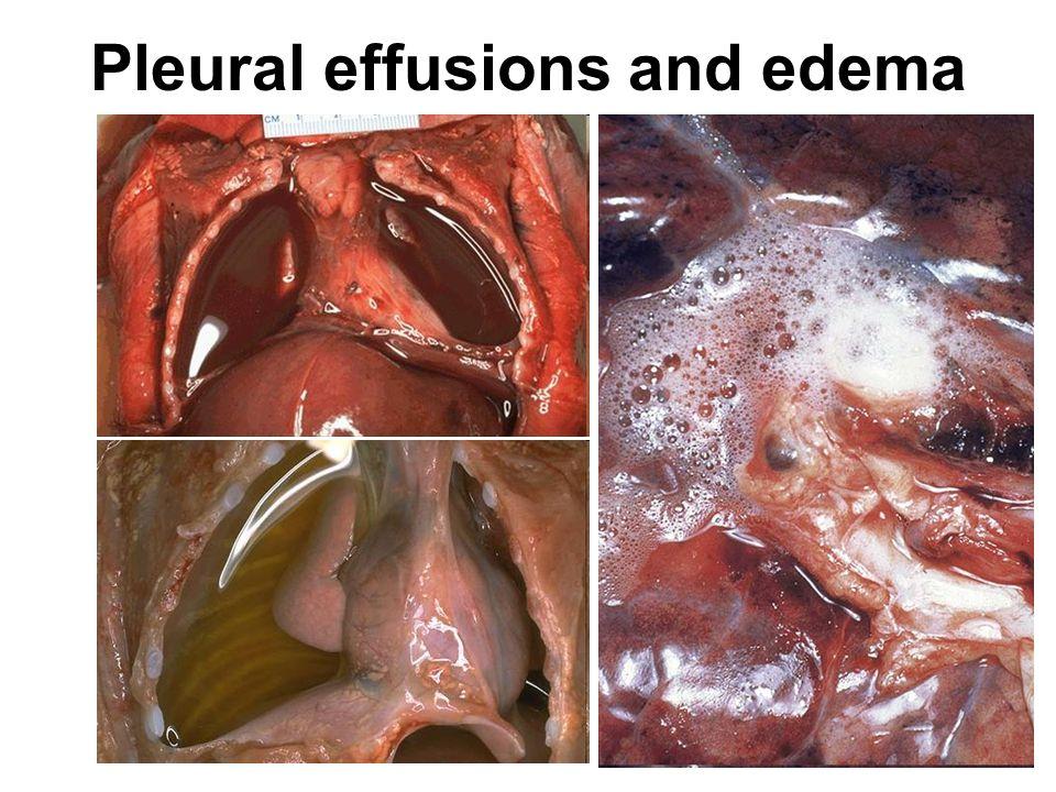 Pleural effusions and edema