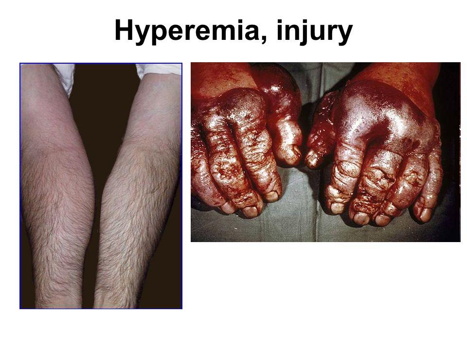 Hyperemia, injury