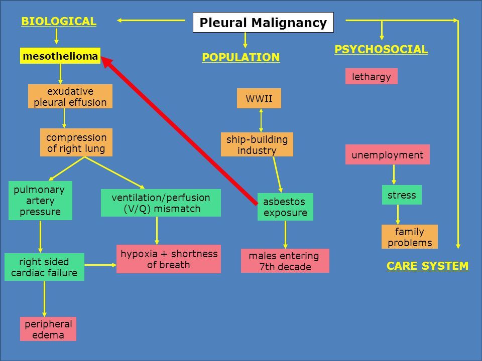 Pleural Malignancy WWII asbestos exposure males entering 7th decade lethargy mesothelioma unemployment hypoxia + shortness of breath ventilation/perfusion (V/Q) mismatch compression of right lung exudative pleural effusion peripheral edema pulmonary artery pressure family problems stress PSYCHOSOCIAL POPULATION BIOLOGICAL CARE SYSTEM right sided cardiac failure ship-building industry
