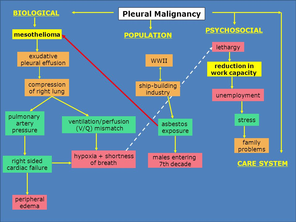 Pleural Malignancy WWII asbestos exposure males entering 7th decade lethargy mesothelioma unemployment reduction in work capacity hypoxia + shortness of breath ventilation/perfusion (V/Q) mismatch compression of right lung exudative pleural effusion peripheral edema pulmonary artery pressure family problems stress PSYCHOSOCIAL POPULATION BIOLOGICAL CARE SYSTEM right sided cardiac failure ship-building industry
