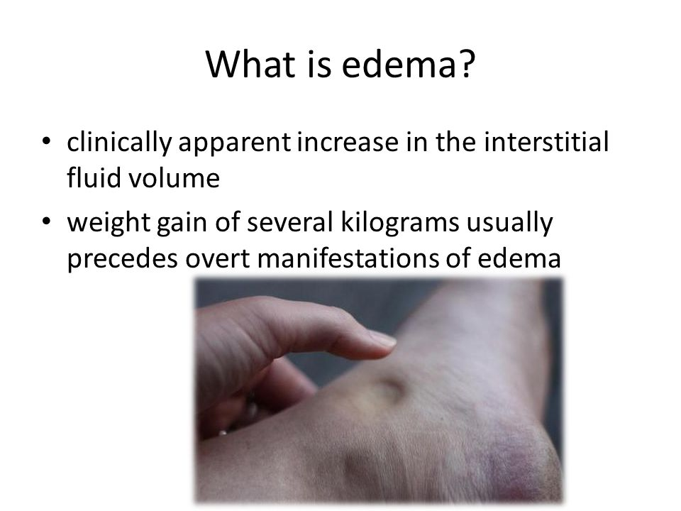 What is edema.