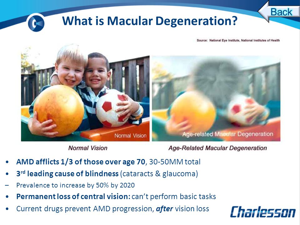 What is Macular Degeneration.