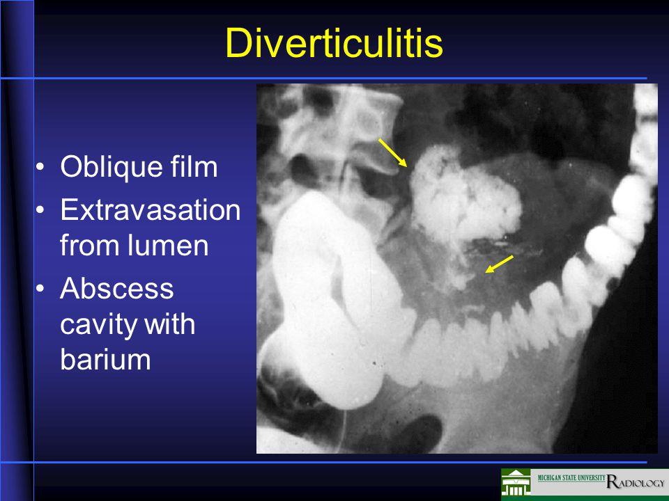 Diverticulitis Oblique film Extravasation from lumen Abscess cavity with barium