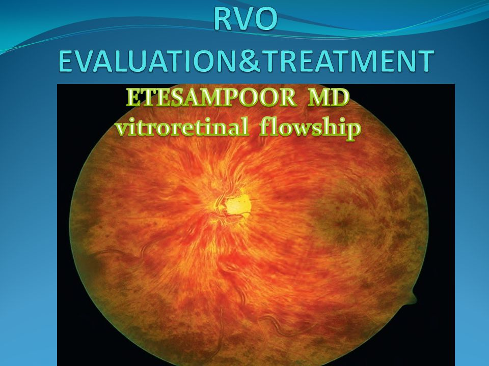 MACULAR EDEMA CORTICOSTEROID THERAPY It is believed that corticosteroid maintain anti-Inflammatory effects with modulation of production of cytokines and growth factor including VEGF.steroid are also stabilize blood retinal barrier with reduction in vascular permeability.