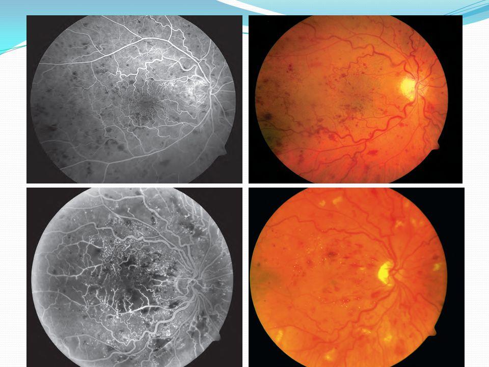BRVO EVALUATION Systemic vascular diseases such as aterioscleros Diabetis,smoking,hyperlipidemia,glaucoma, and ocular inflammatory disease.