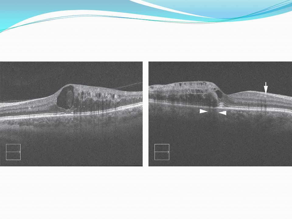 Follow up In CRVO eye with initial acuity of 20/40 or better were generally examined every1-2 MO for 6 MO,then annually if stable.