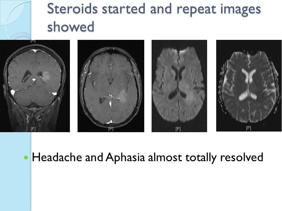 Steroids started and repeat images showed Headache and Aphasia almost totally resolved