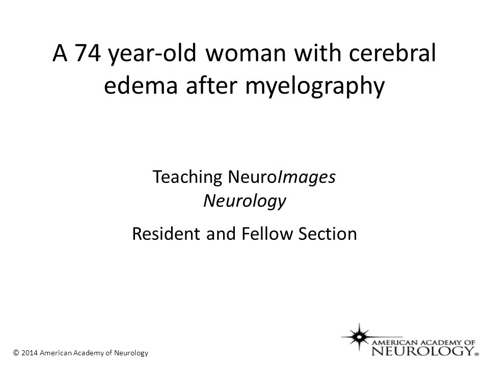 Teaching NeuroImages Neurology Resident and Fellow Section © 2014 American Academy of Neurology A 74 year-old woman with cerebral edema after myelography