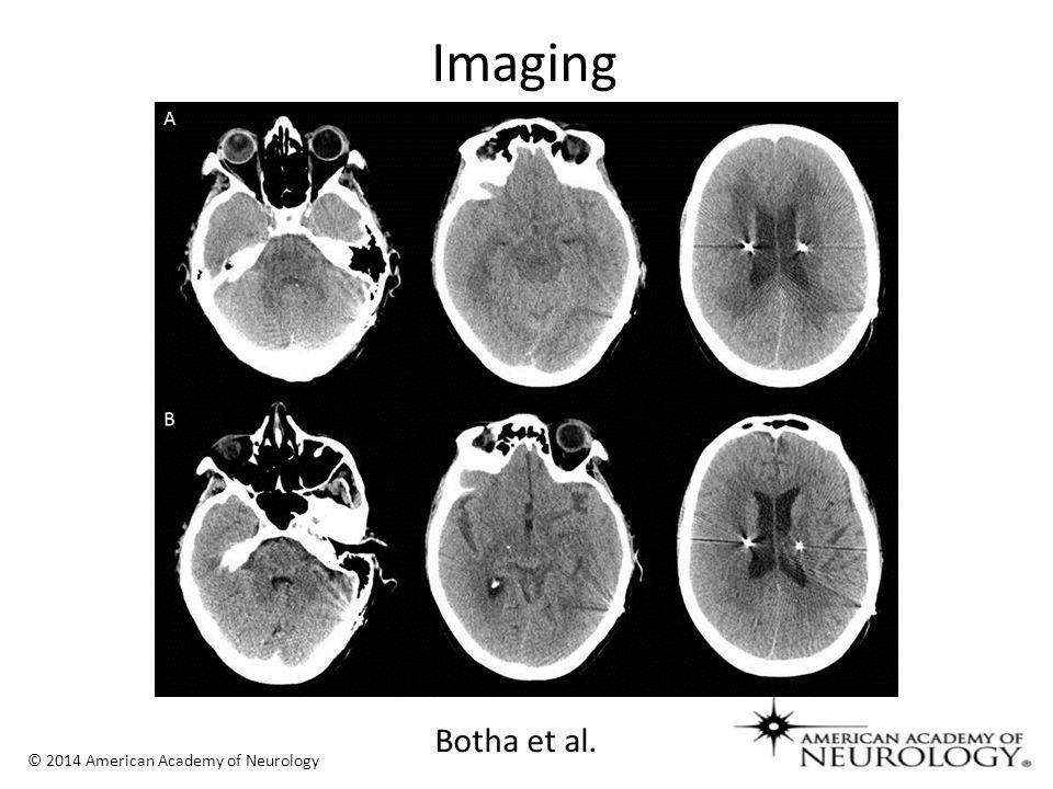 © 2014 American Academy of Neurology Botha et al.