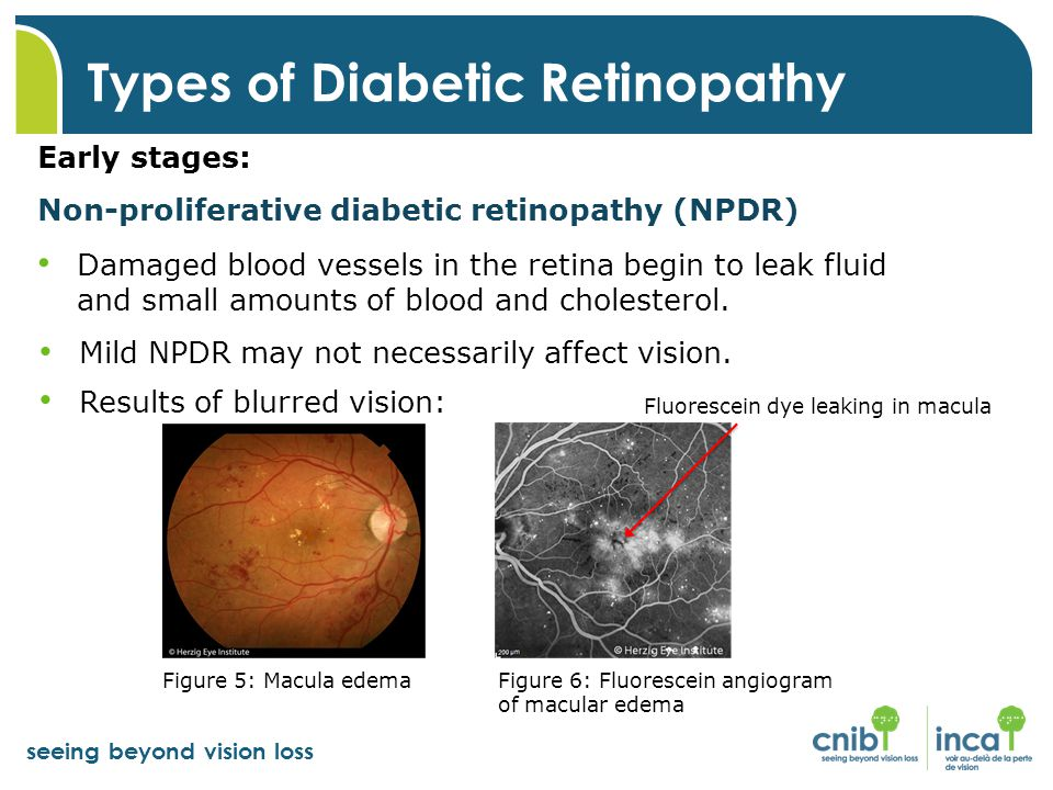 seeing beyond vision loss Types of Diabetic Retinopathy Early stages: Non-proliferative diabetic retinopathy (NPDR) Damaged blood vessels in the retina begin to leak fluid and small amounts of blood and cholesterol.