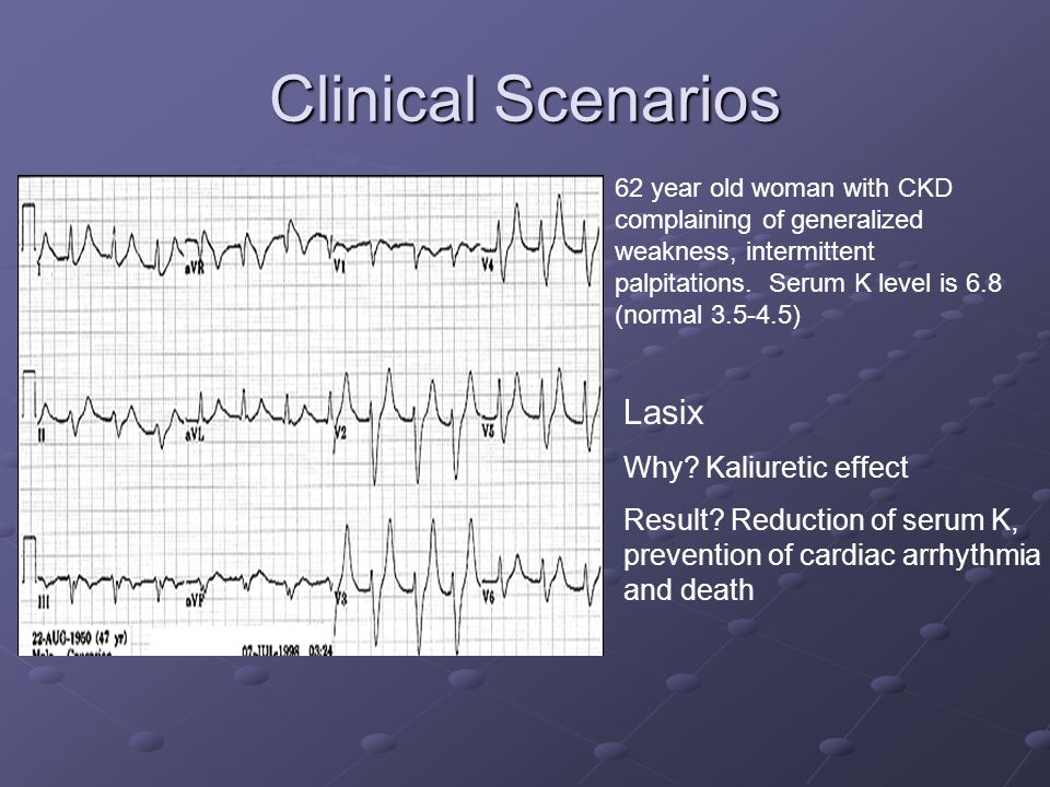 Clinical Scenarios 62 year old woman with CKD complaining of generalized weakness, intermittent palpitations.