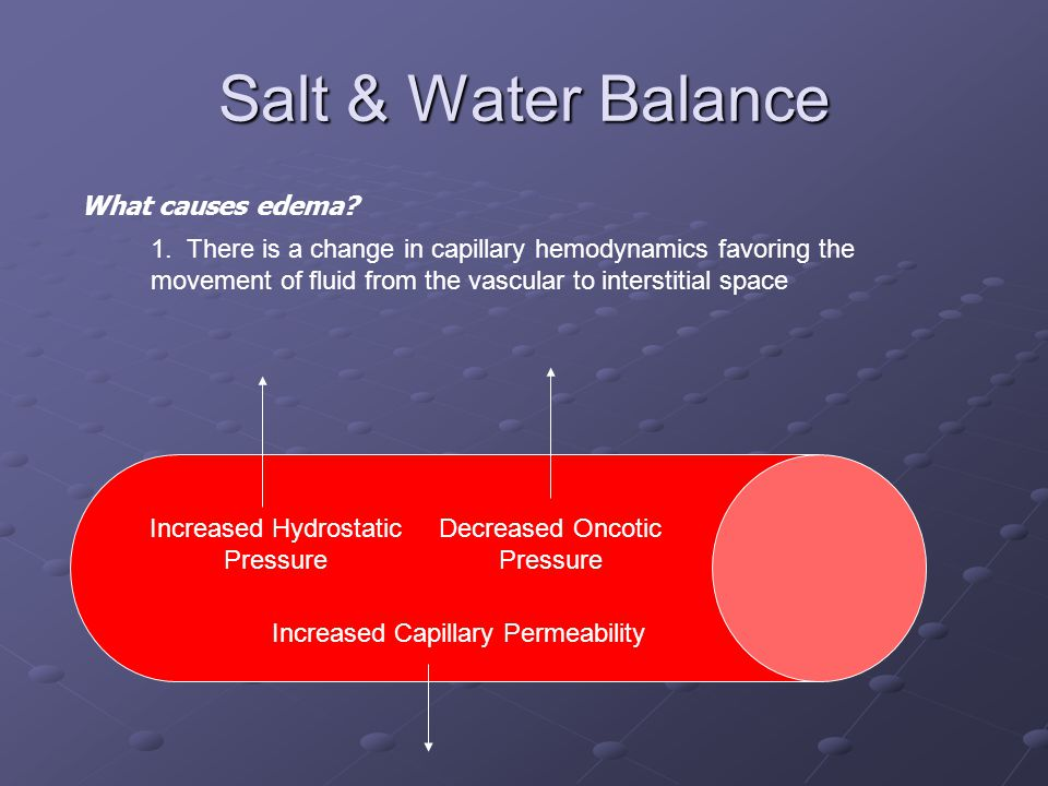 Salt & Water Balance What causes edema? 1. There is a change in capillary hemodynamics favoring the movement of fluid from the vascular to interstitia