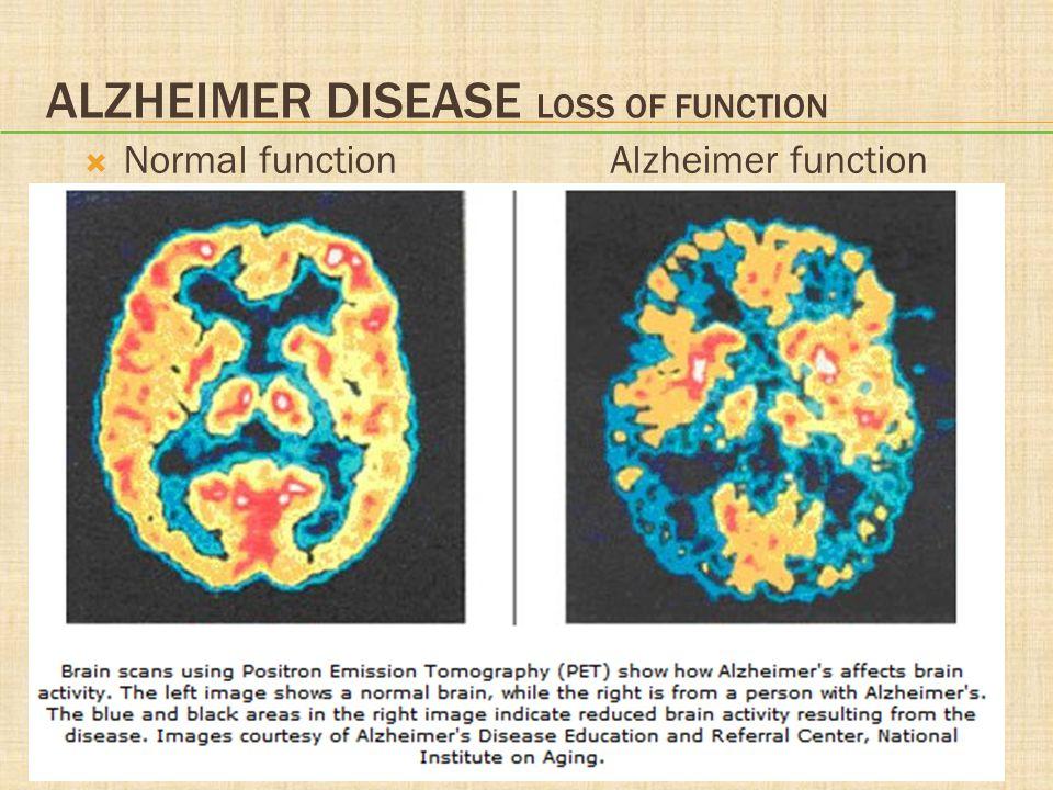 ALZHEIMER DISEASE LOSS OF FUNCTION  Normal functionAlzheimer function