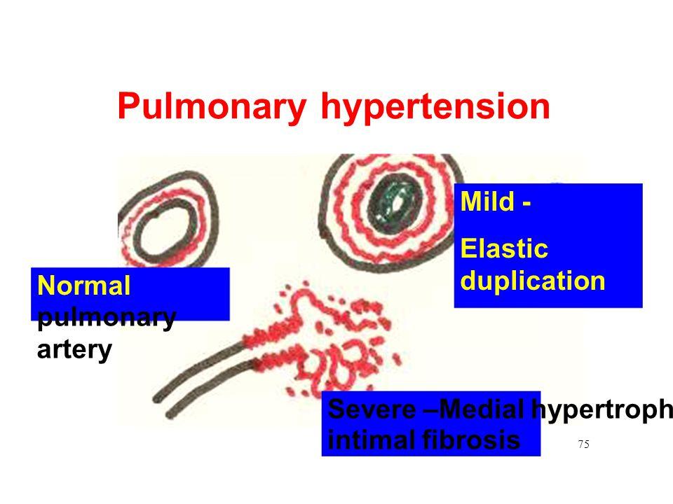 Pulmonary hypertension Mild - Elastic Normal pulmonary artery Severe –Medial hypertrophy, intimal fibrosis duplication 75