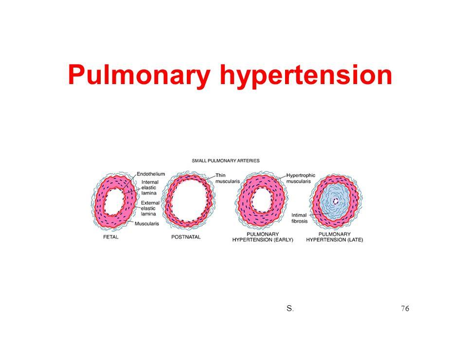Pulmonary hypertension S. 76