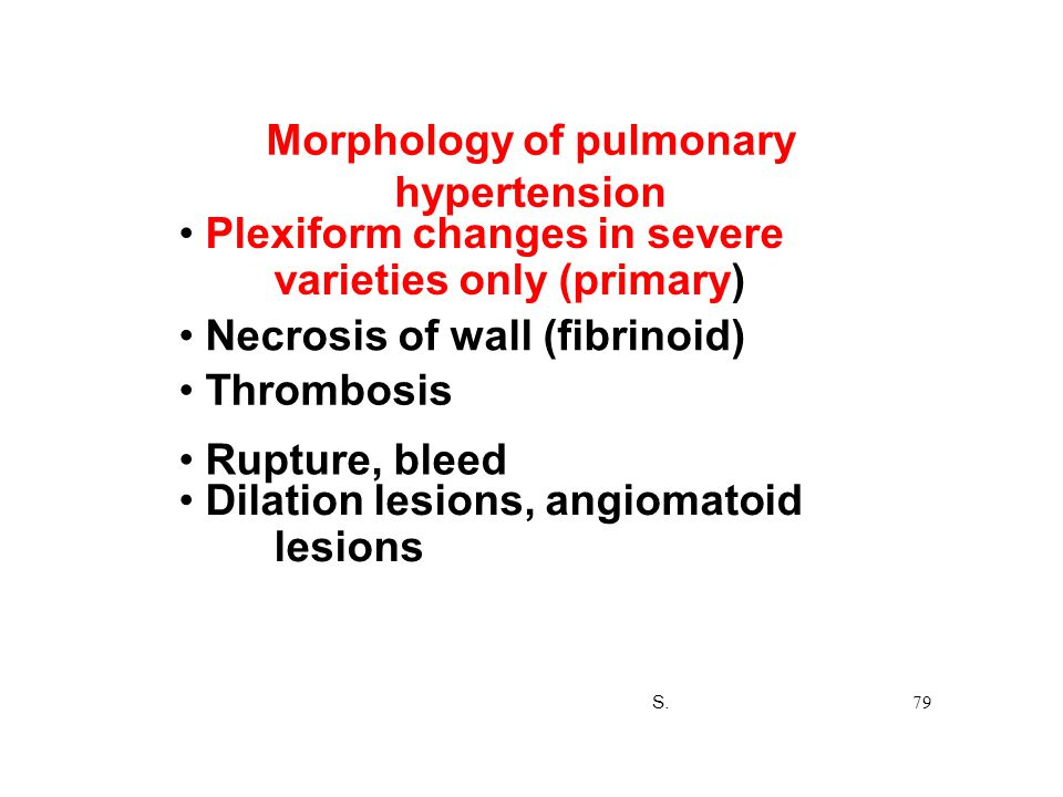 Morphology of pulmonary hypertension Plexiform changes in severe varieties only (primary) Necrosis of wall (fibrinoid) Thrombosis Rupture, bleed Dilat
