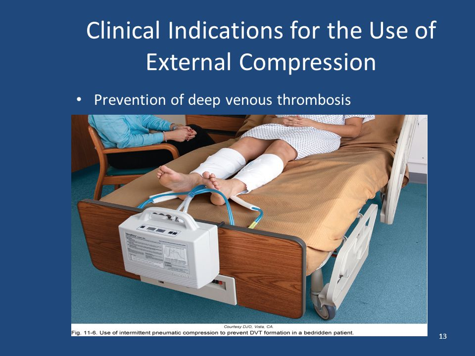 Clinical Indications for the Use of External Compression Prevention of deep venous thrombosis 13