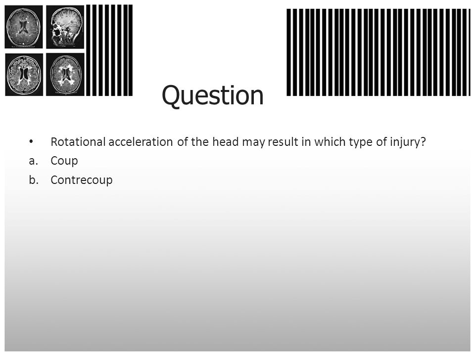 Question Rotational acceleration of the head may result in which type of injury? a.Coup b.Contrecoup