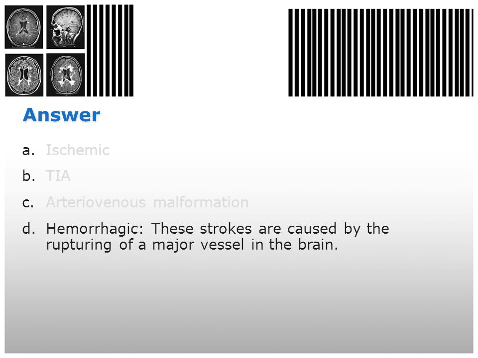 Answer a.Ischemic b.TIA c.Arteriovenous malformation d.Hemorrhagic: These strokes are caused by the rupturing of a major vessel in the brain.