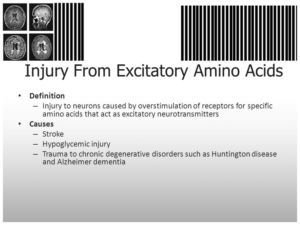 Injury From Excitatory Amino Acids Definition – Injury to neurons caused by overstimulation of receptors for specific amino acids that act as excitato