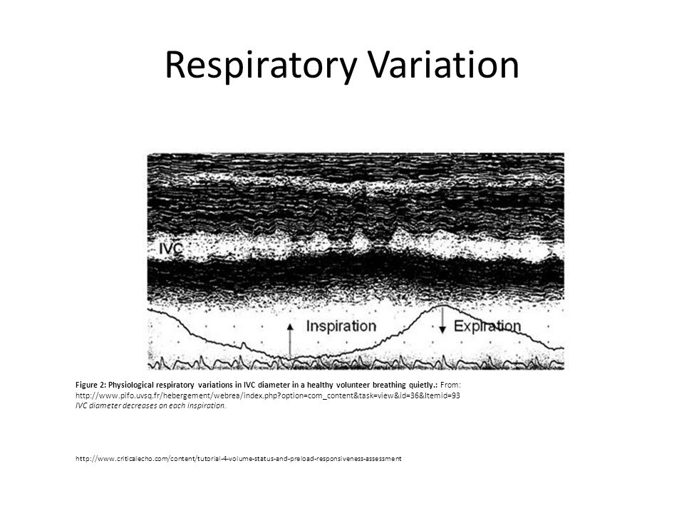 Respiratory Variation Figure 2: Physiological respiratory variations in IVC diameter in a healthy volunteer breathing quietly.: From: http://www.pifo.