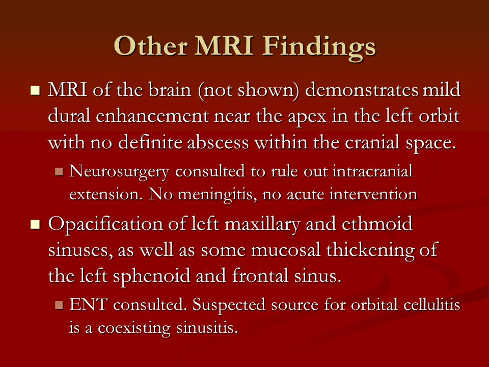 Other MRI Findings MRI of the brain (not shown) demonstrates mild dural enhancement near the apex in the left orbit with no definite abscess within the cranial space.