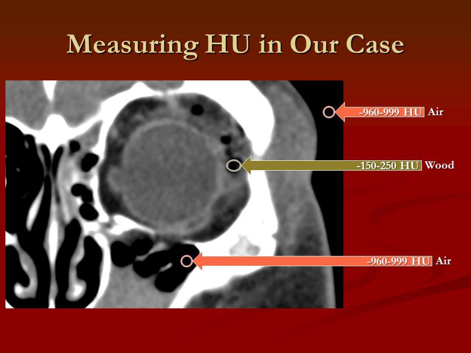 Measuring HU in Our Case -960-999 HU -150-250 HU Air Wood -960-999 HU Air