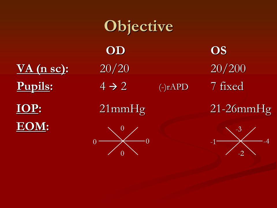 IOP:21mmHg21-26mmHg EOM: Objective OD OS OD OS VA (n sc):20/2020/200 Pupils: 4  27 fixed 00 0 0 -3 -2 -4 (-)rAPD
