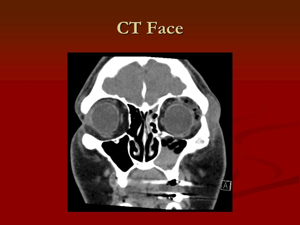 CT Face