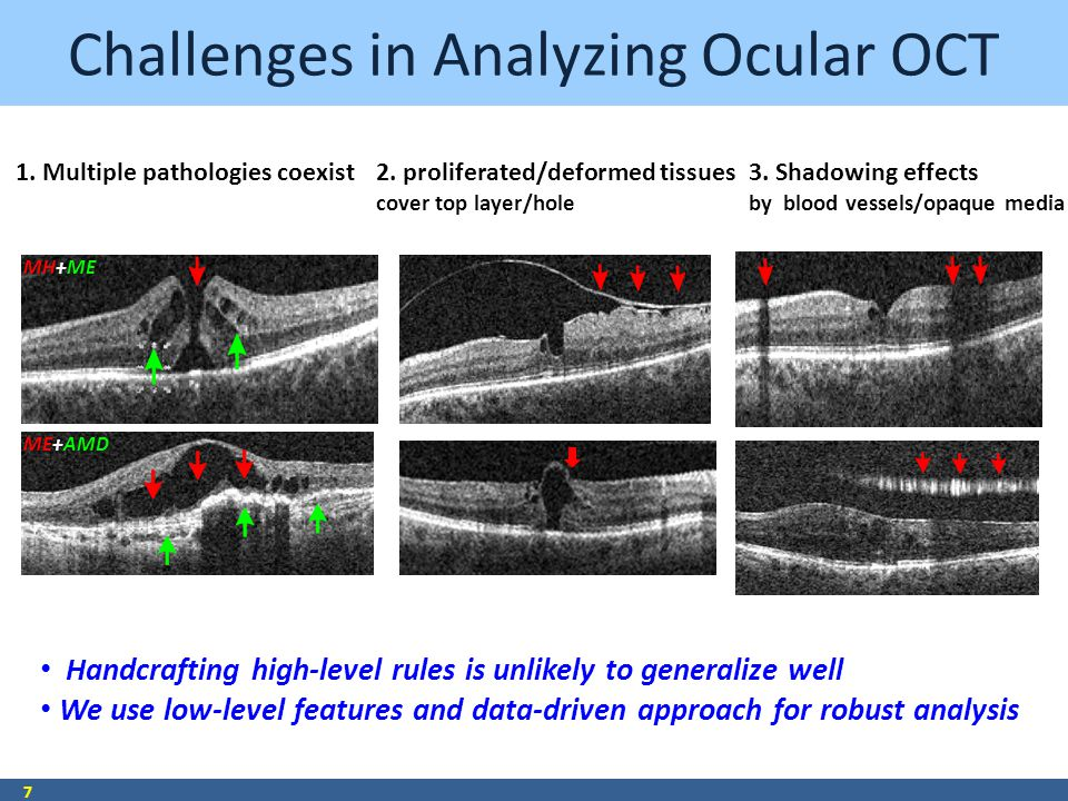 Challenges in Analyzing Ocular OCT 7 Handcrafting high-level rules is unlikely to generalize well We use low-level features and data-driven approach for robust analysis 1.
