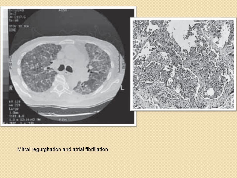 Mitral regurgitation and atrial fibrillation