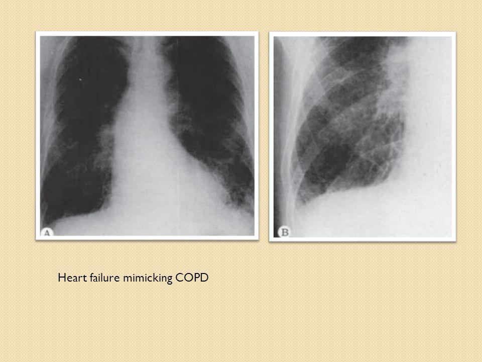 Heart failure mimicking COPD