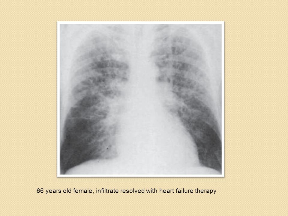 66 years old female, infiltrate resolved with heart failure therapy