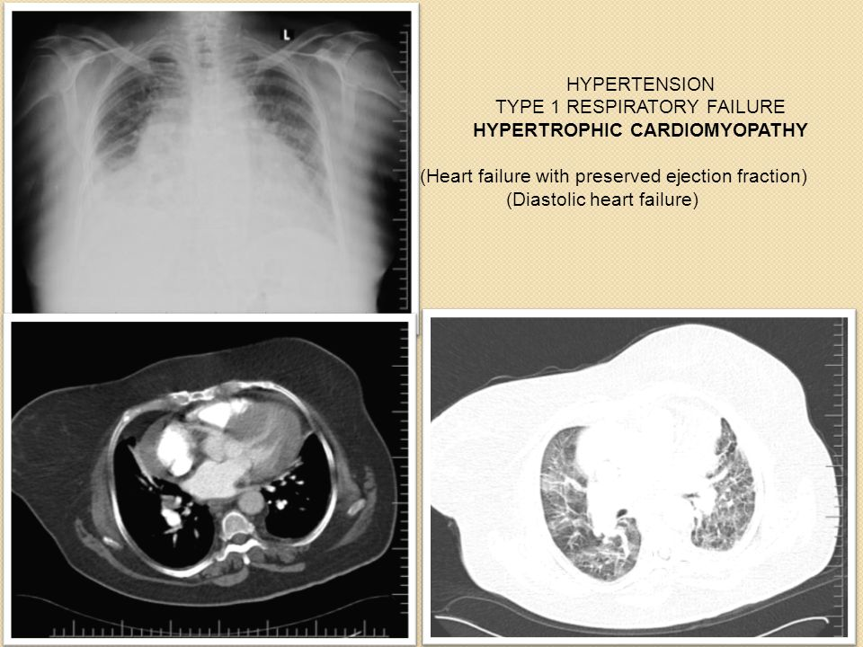 Aysel gürel HYPERTENSION TYPE 1 RESPIRATORY FAILURE HYPERTROPHIC CARDIOMYOPATHY (Heart failure with preserved ejection fraction) (Diastolic heart failure)