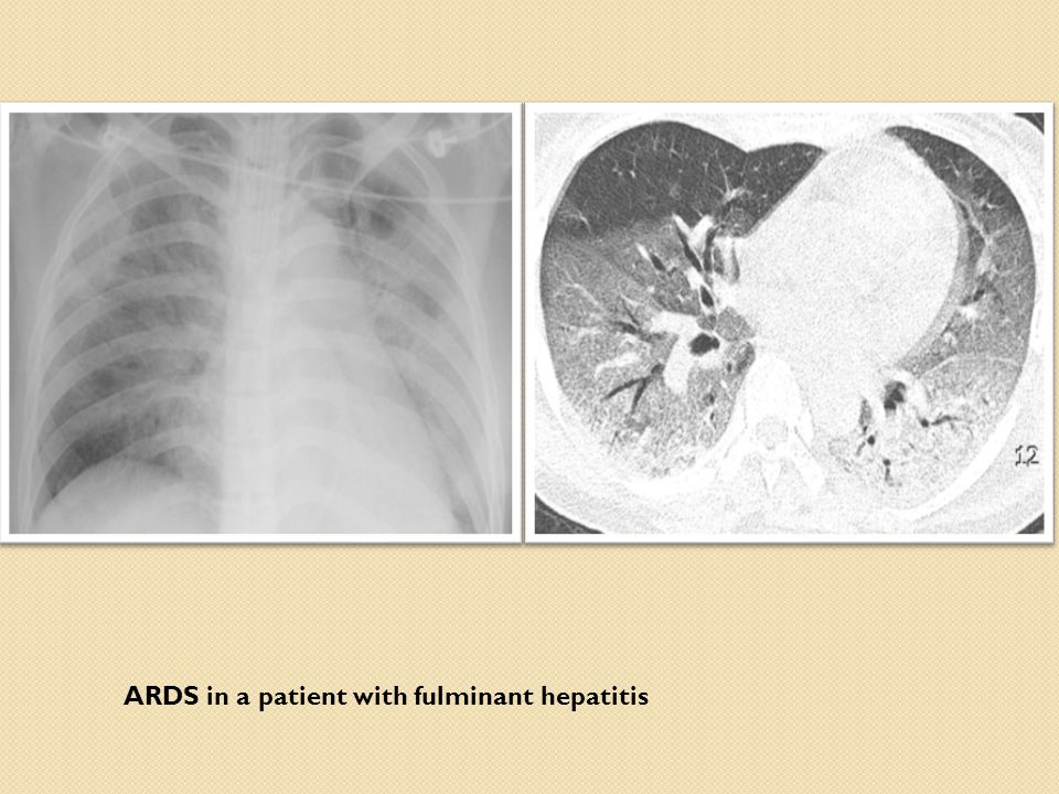 ARDS in a patient with fulminant hepatitis
