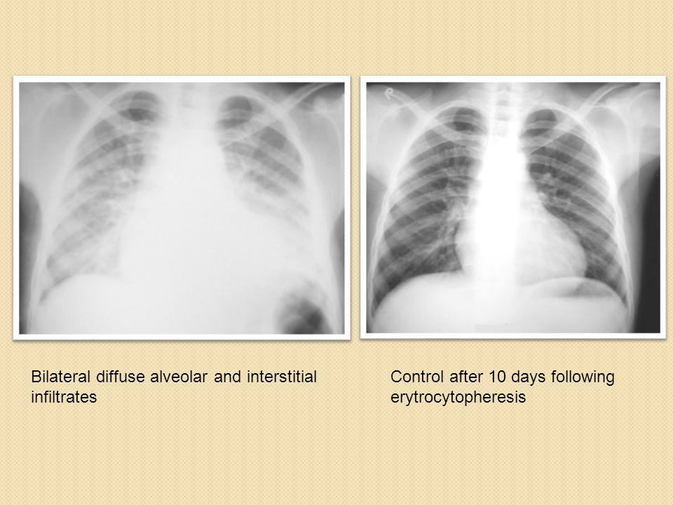 Bilateral diffuse alveolar and interstitial infiltrates Control after 10 days following erytrocytopheresis
