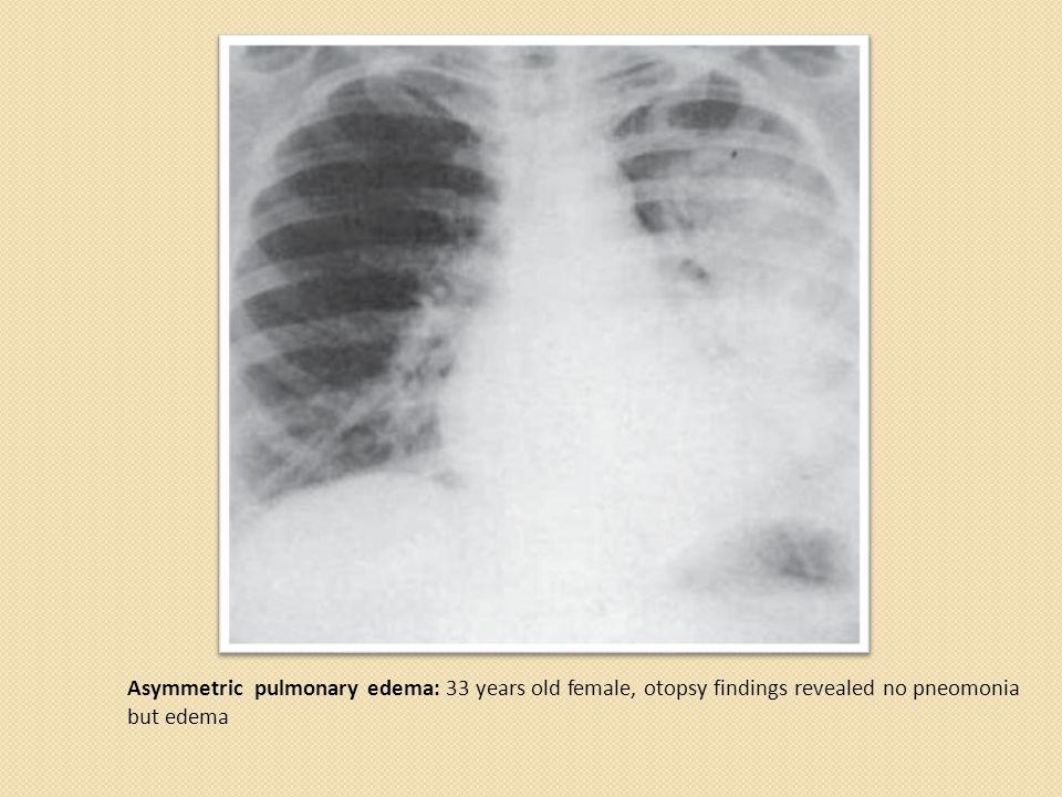 Asymmetric pulmonary edema: 33 years old female, otopsy findings revealed no pneomonia but edema