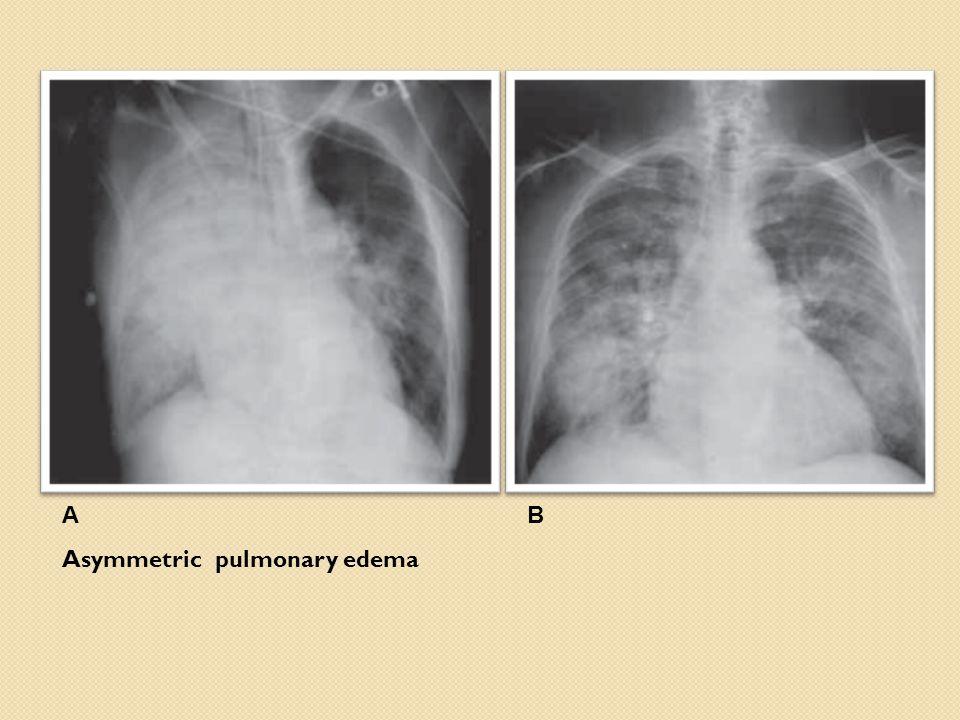 AB Asymmetric pulmonary edema