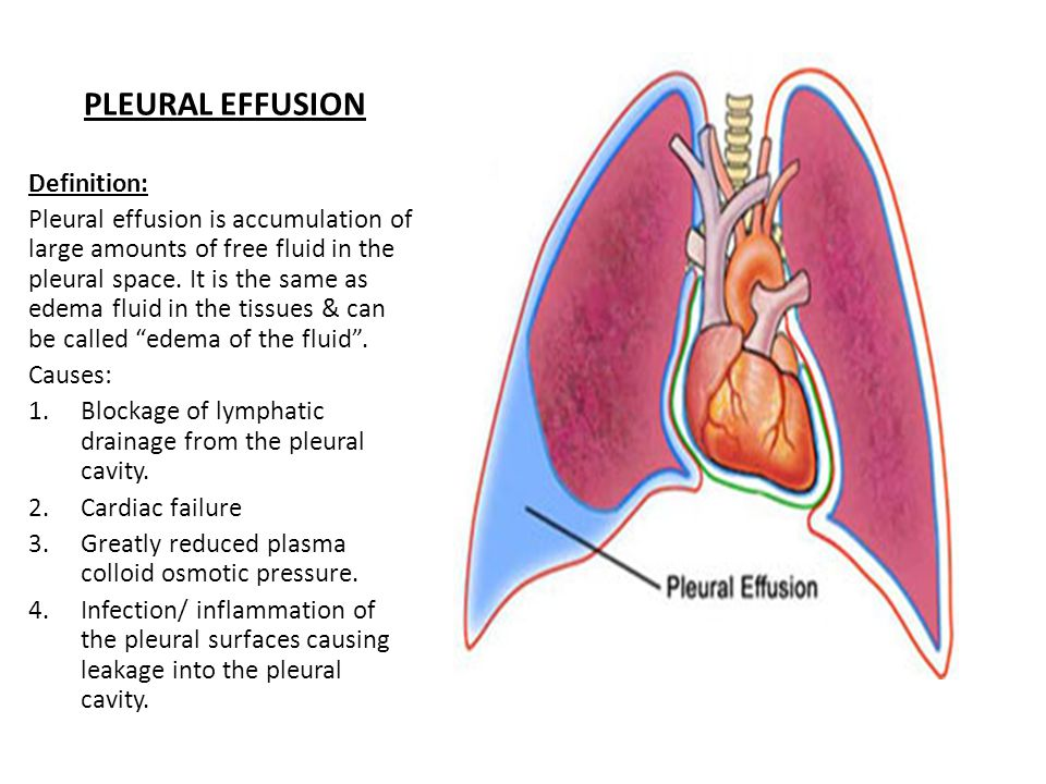 PLEURAL EFFUSION Definition: Pleural effusion is accumulation of large amounts of free fluid in the pleural space.