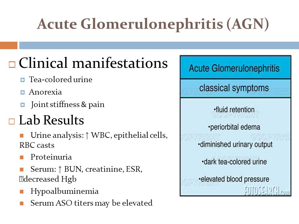 Acute Glomerulonephritis (AGN)  Clinical manifestations  Tea-colored urine  Anorexia  Joint stiffness & pain  Lab Results Urine analysis: ↑ WBC,