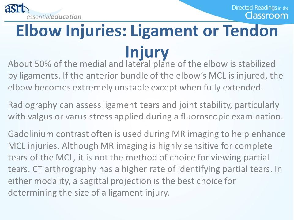Elbow Injuries: Ligament or Tendon Injury About 50% of the medial and lateral plane of the elbow is stabilized by ligaments.