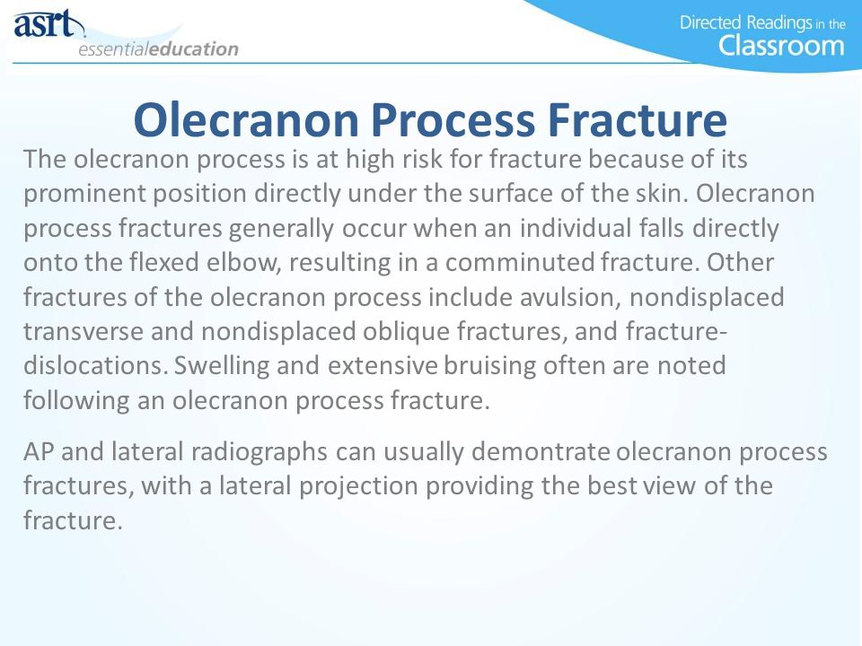 Olecranon Process Fracture The olecranon process is at high risk for fracture because of its prominent position directly under the surface of the skin.