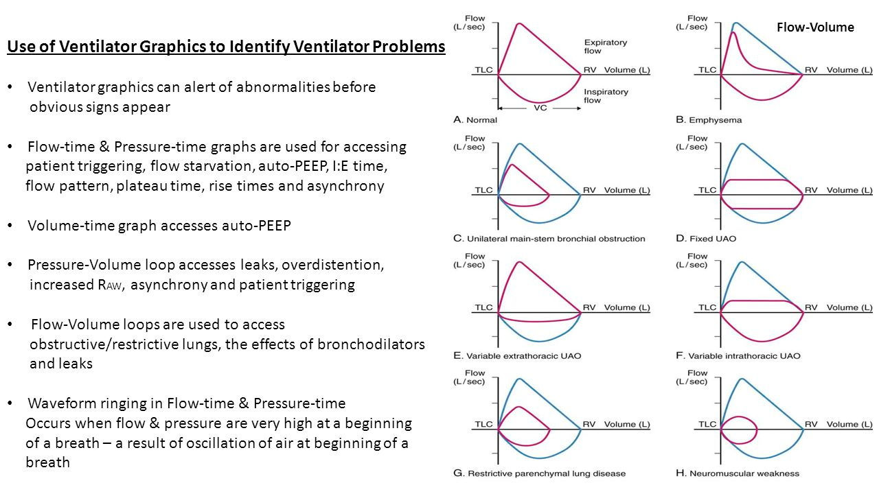 Use of Ventilator Graphics to Identify Ventilator Problems Ventilator graphics can alert of abnormalities before obvious signs appear Flow-time & Pres
