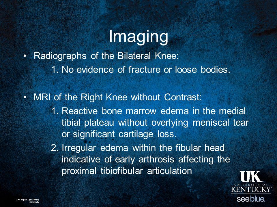 Risk Factors Intrinsic Factors –Metabolic state (Vit D, EA, etc) –Menstrual patterns –Fitness level –Anatomic alignment –Microscopic bone structure –Bone vascularity An Equal Opportunity University