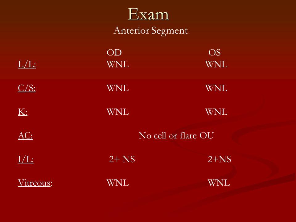 Exam Anterior Segment OD OS L/L: WNL WNL C/S:WNL WNL K:WNL WNL AC: No cell or flare OU I/L: 2+ NS 2+NS Vitreous:WNL WNL