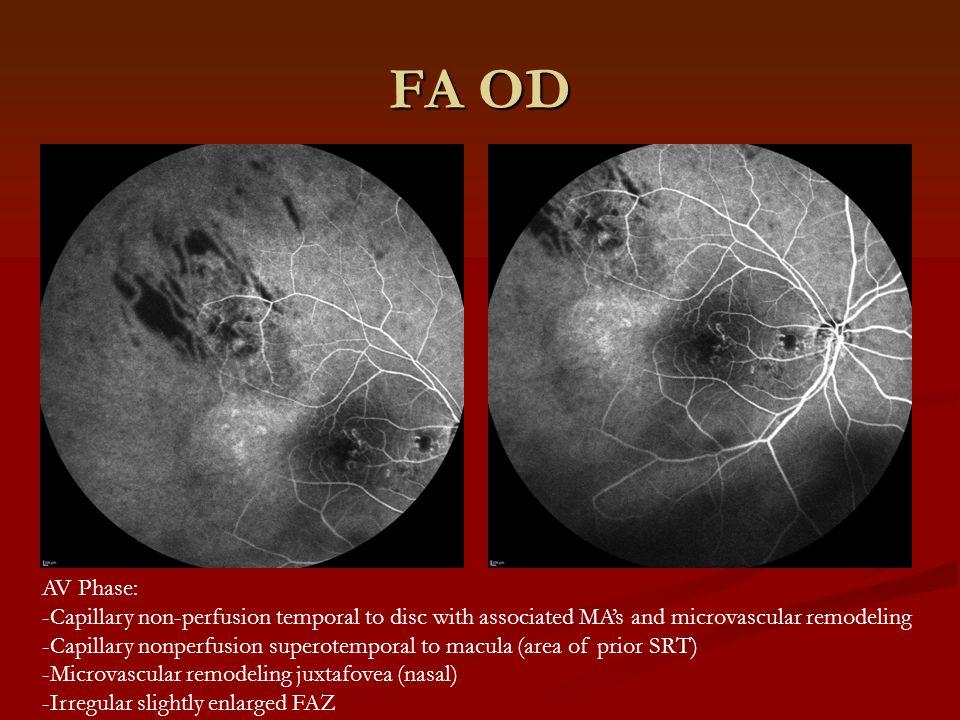 FA OD AV Phase: -Capillary non-perfusion temporal to disc with associated MA's and microvascular remodeling -Capillary nonperfusion superotemporal to macula (area of prior SRT) -Microvascular remodeling juxtafovea (nasal) -Irregular slightly enlarged FAZ